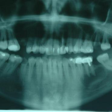 Αρχική ακτινογραφία στο οδοντιατρείο