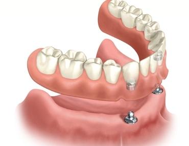 dental-2
