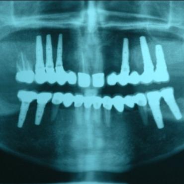 Ακτινογραφία μετά θεραπείας