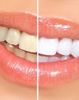 Αισθητική Οδοντιατρική